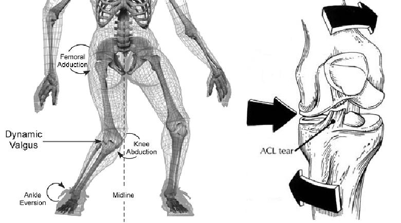 LCA-mecanismo-de-lesion